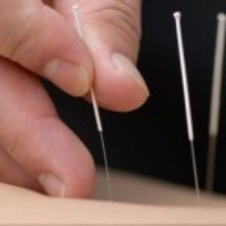The Joy of Acupuncture